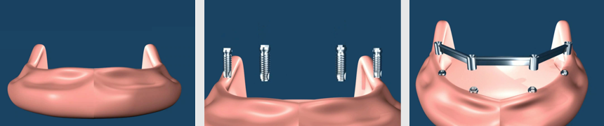 Implant Supported Removable Dentures Seattle