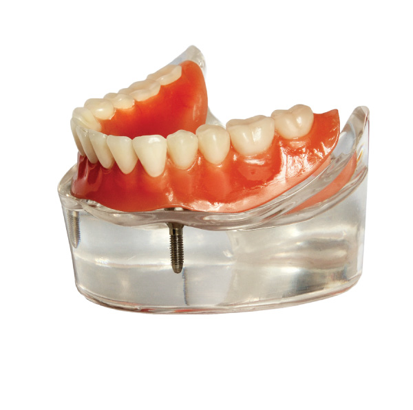 Seattle Lower Denture