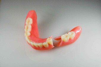 A Dental & Denture Seattle | Dentures | Denture Repairs